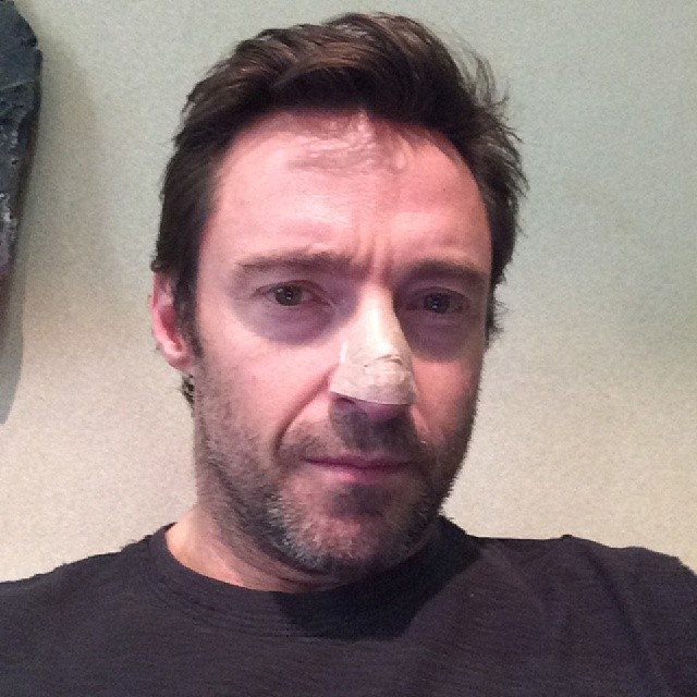 An image of Hugh Jackman after the removal of his third basal cell carcinoma from his nose.